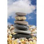 kidney_stone1-150x150