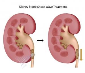 Lithotripsy Kidney Stones